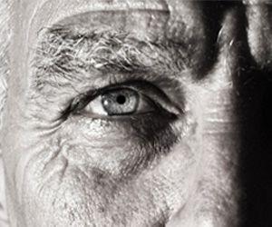 Senile macular degeneration